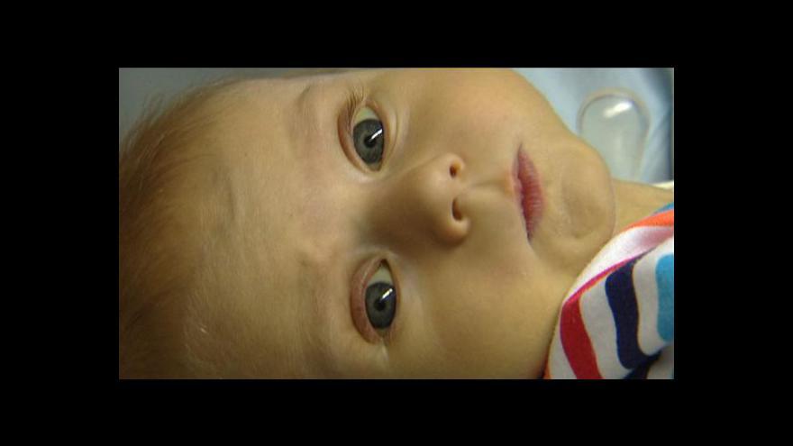 Video Reportáž Barbory Straňákové o transplantaci jater