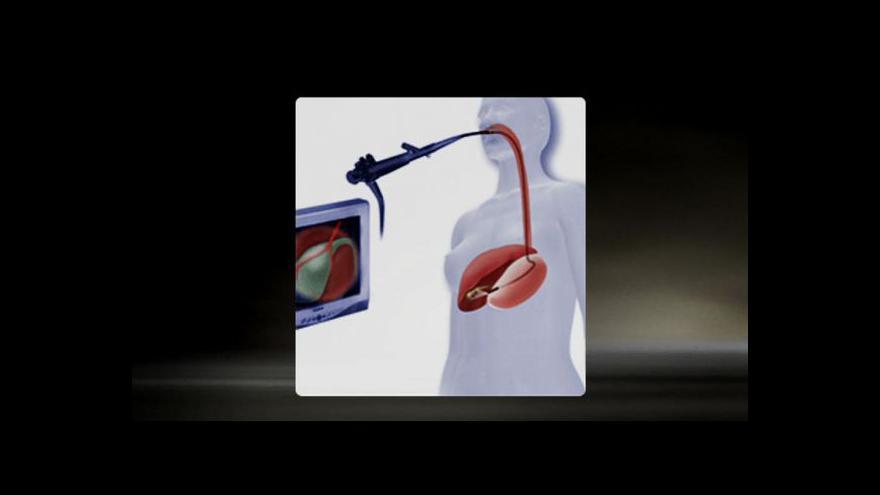 Video Unikátní metoda operace žlučníku