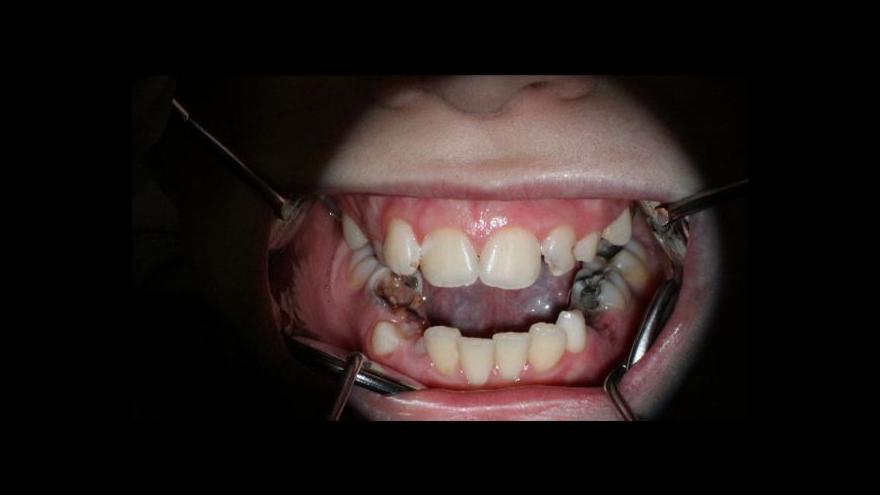 Video Dětská zubní péče pohledem Událostí