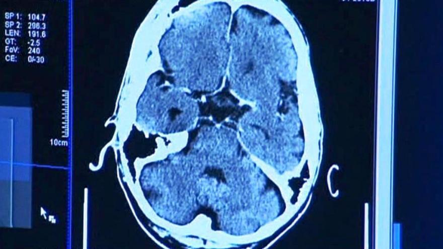 Video Pronikání mozkem