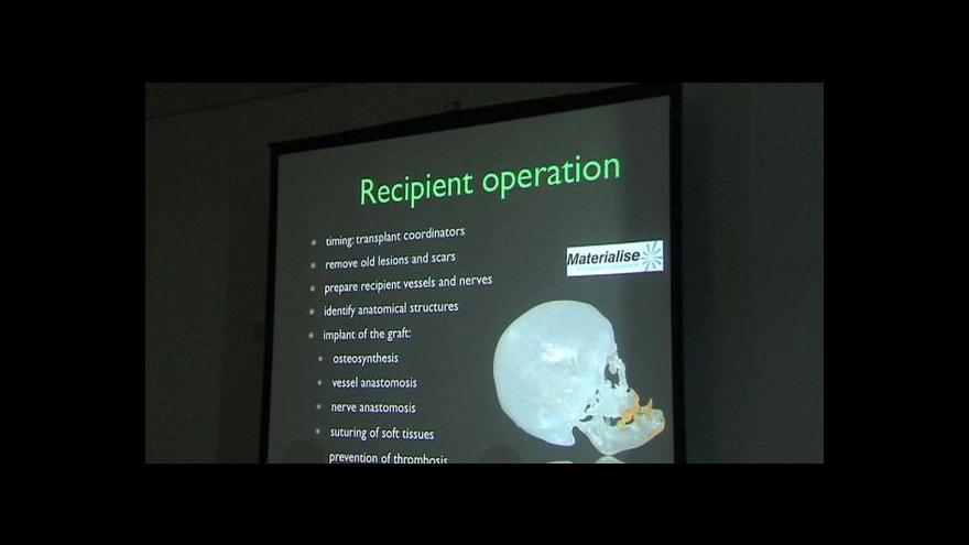 Video Lékaři v Belgii provedli úspěšnou operaci obličeje