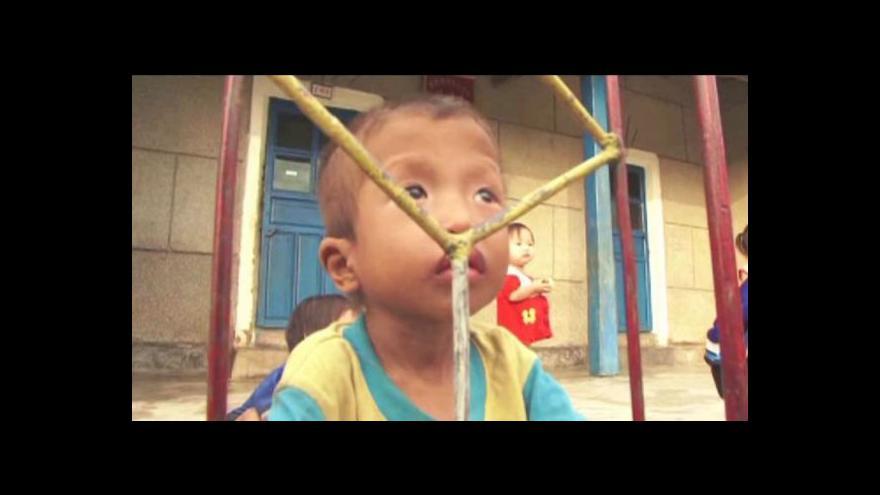 Video Podvyživené děti v KLDR