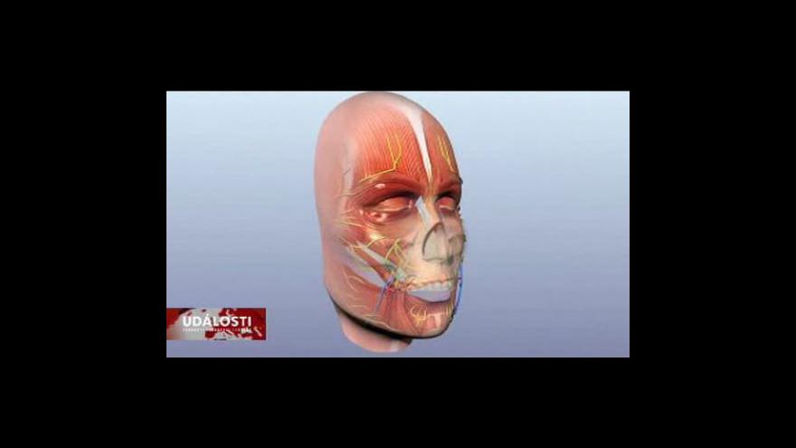 Video Reportáž o transplantaci obličeje
