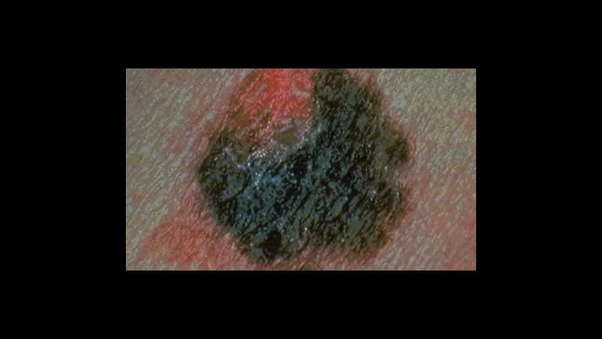 Video Objev nových léků na rakovinu kůže