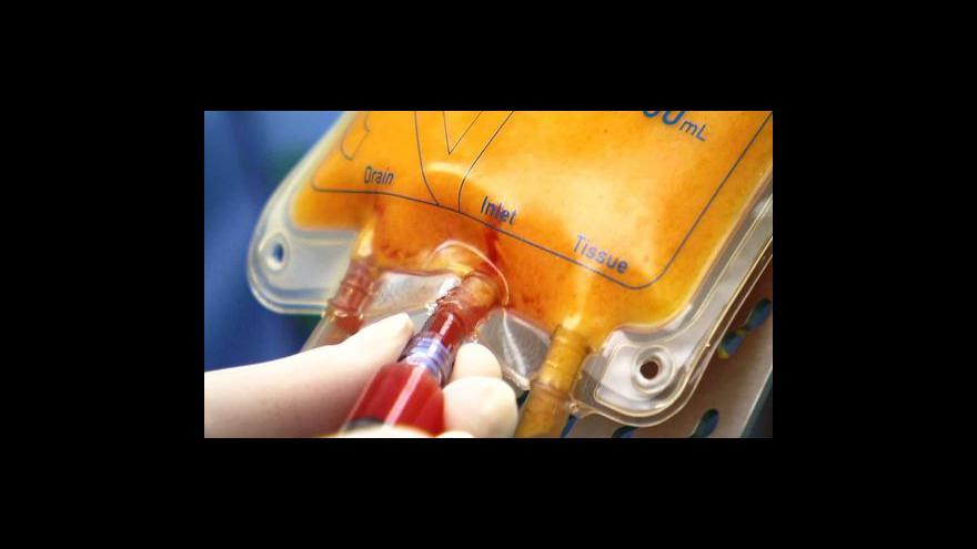 Video Plastický chirurg Libor Kment ve Studiu ČT24