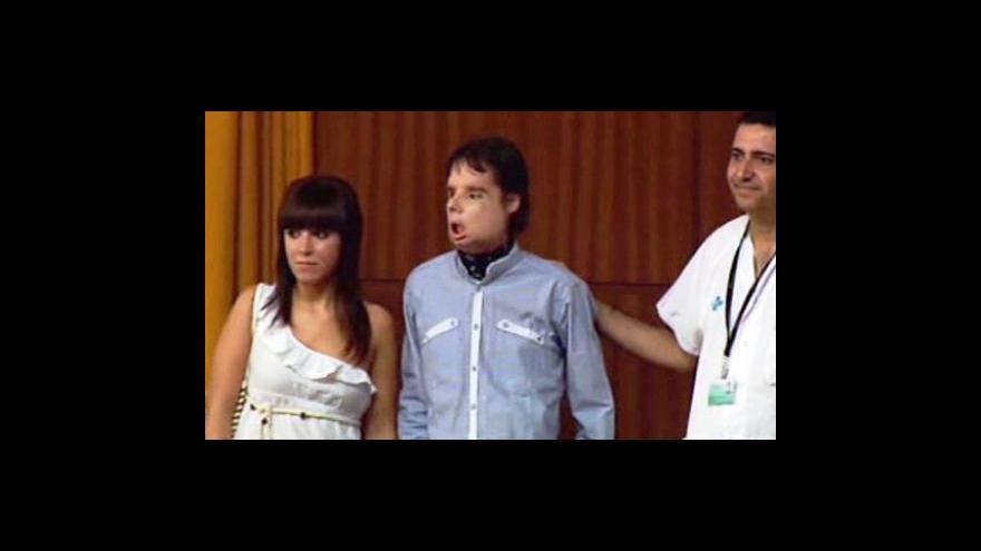 Video Španěl s transplantovaným obličejem poprvé na veřejnosti