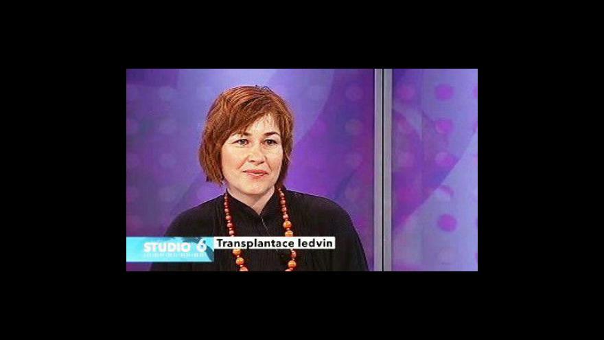 Video Rozhovor s lékařkou Marcelou Bürgelovou