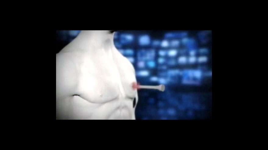 Video NO COMMENT: Pěticentimetrový hřebík v srdci