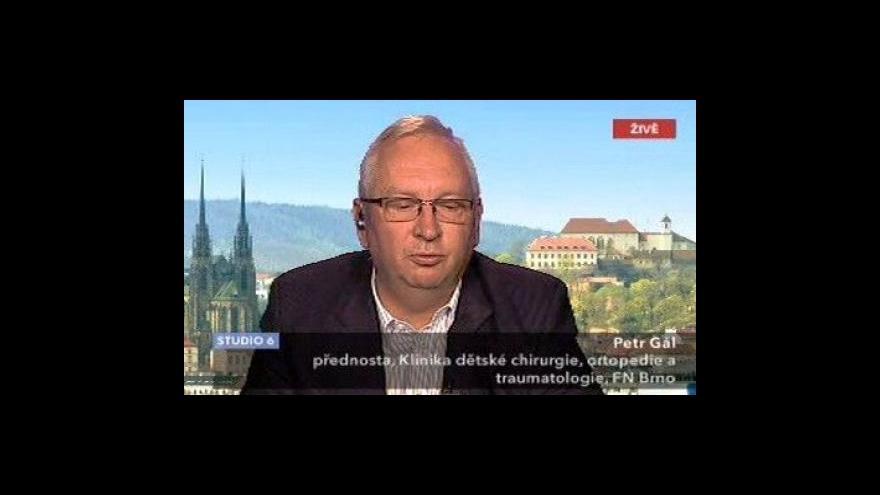 Video Rozhovor s Petrem Gálem