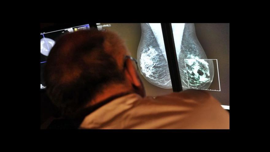 Video Češky už se vyšetření prsou nebojí