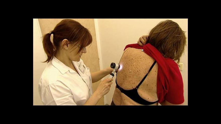 Video Akce Stan proti melanomu startuje příští týden