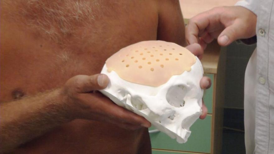 Video Lékaři poprvé nahradili pacientovi část lebky titanovou destičkou vyrobenou na míru