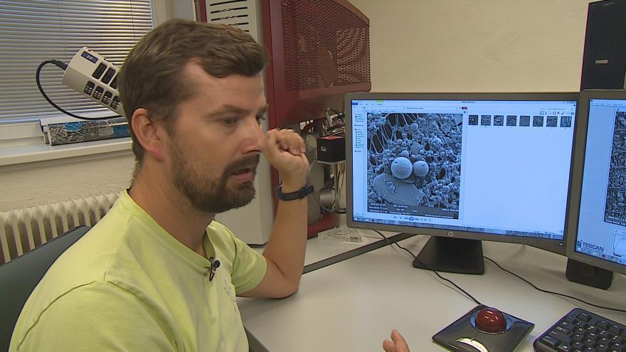 Video Robert Skeřil popisuje elektronovým mikroskopem zvětšenou prachovou částici