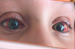 Covid-19 se u dětí může projevovat zarudlýma očima