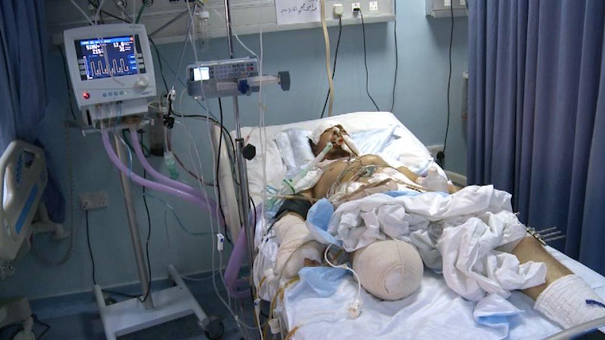 Za šanci přežít vděčí Rami českým lékařům