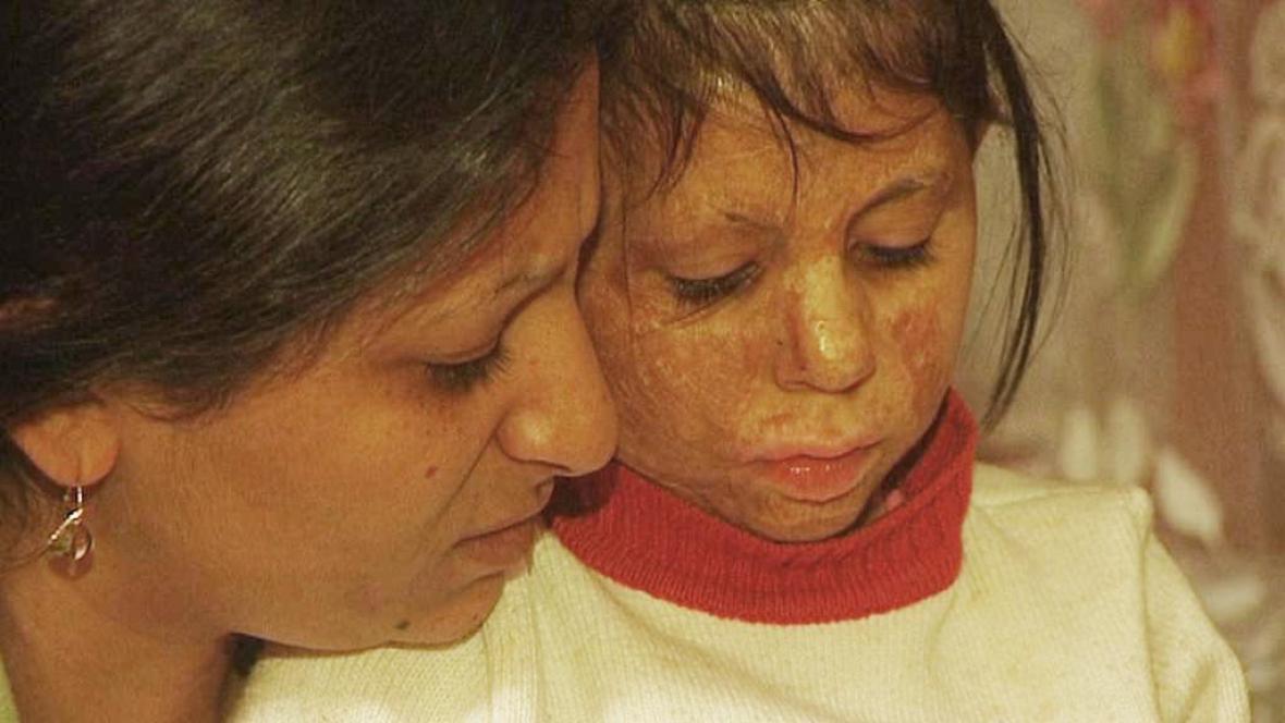 Natálka Siváková s matkou