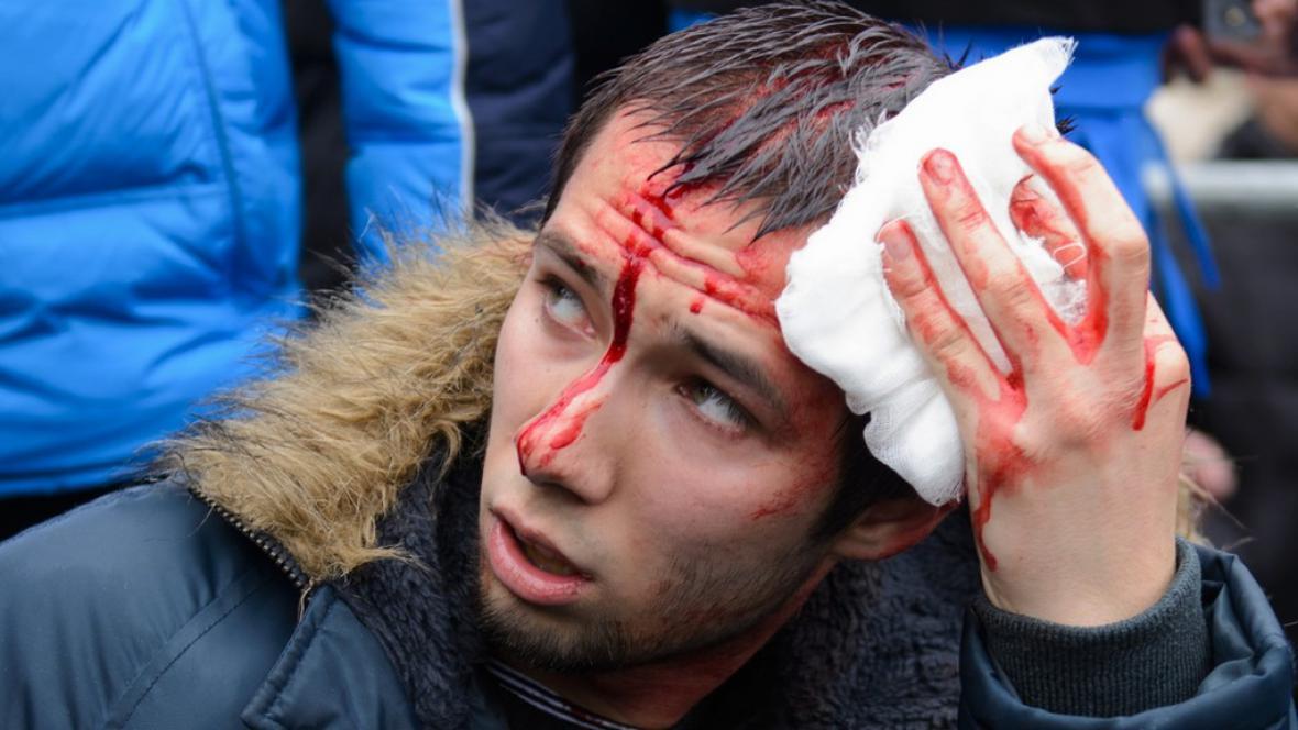 Zraněný aktivista v Charkově