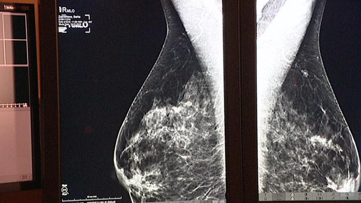 Screening prsu