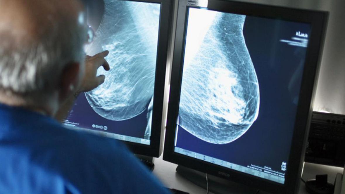Vyšetření prsu
