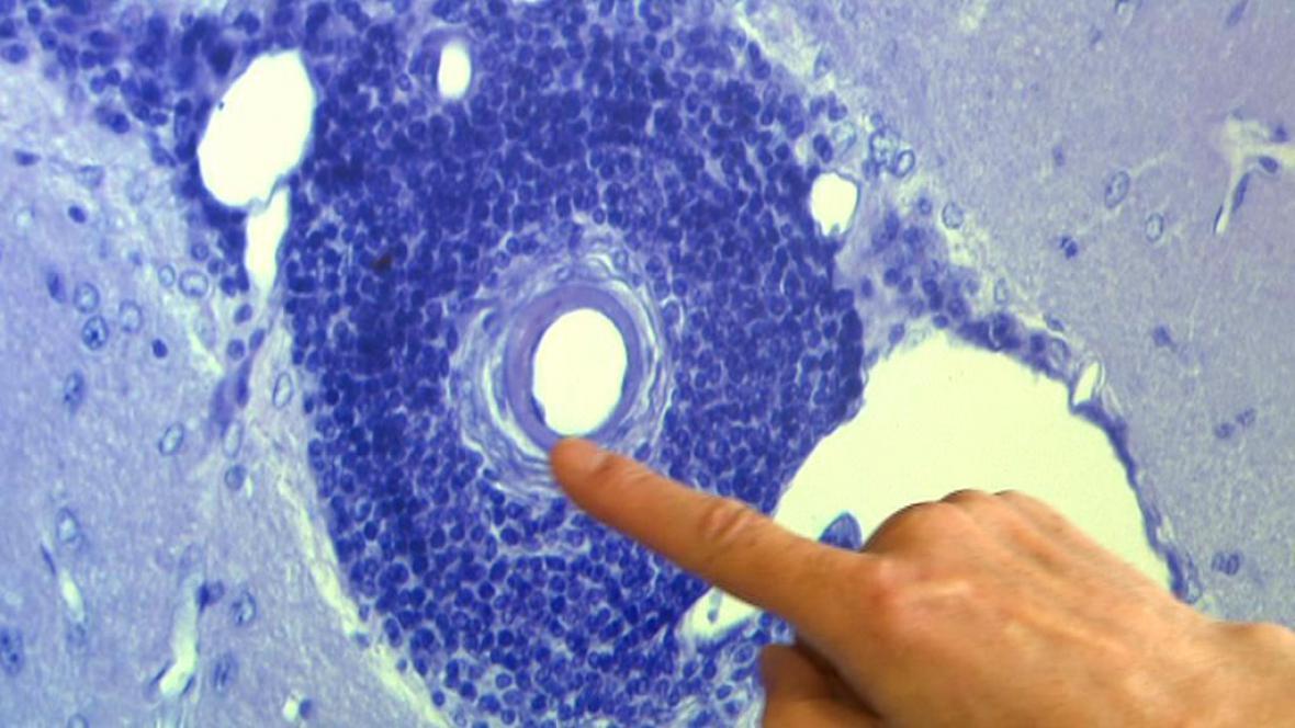 Výzkum toxoplazmózy