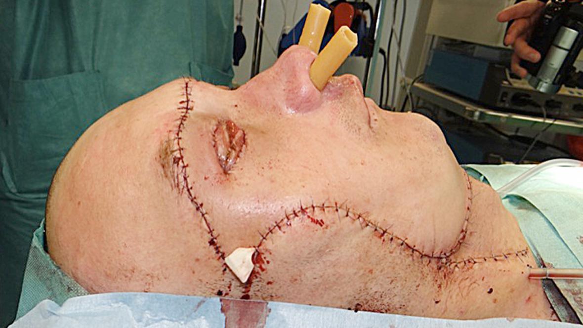 Muž, kterému v Polsku transplantovali obličej