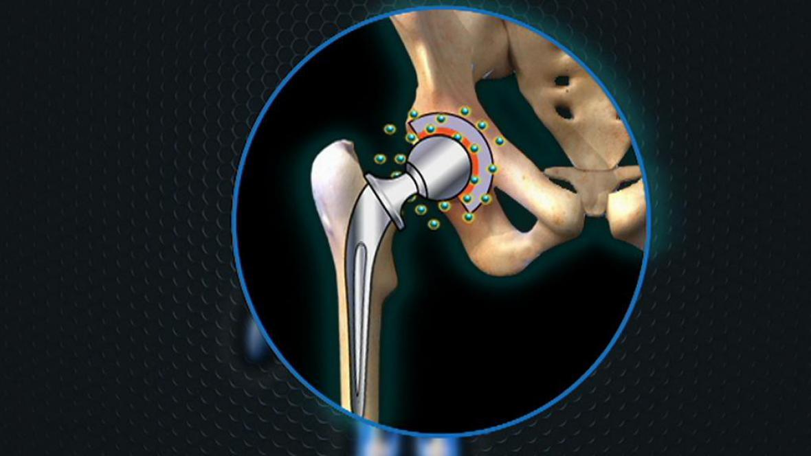 Inovovaný implantát