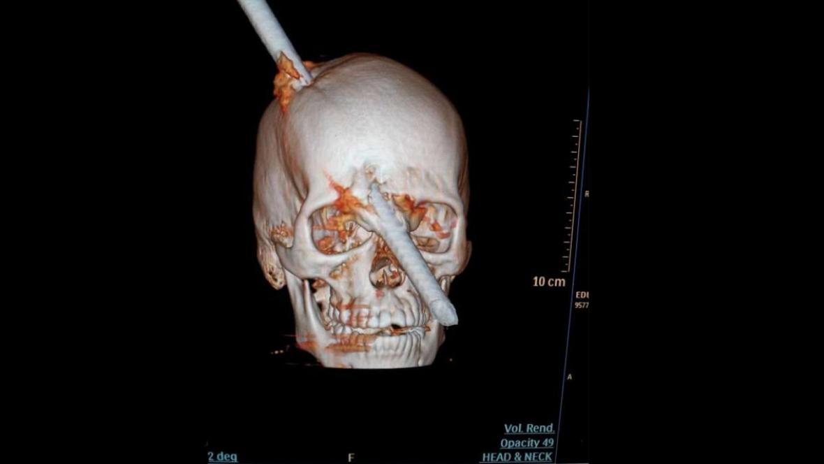 Stavebnímu dělníkovi prošla hlavou kovová tyč