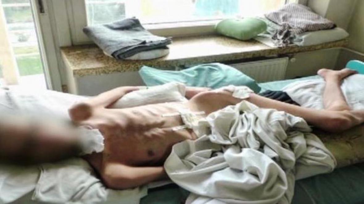 Pacient v kábulské nemocnici