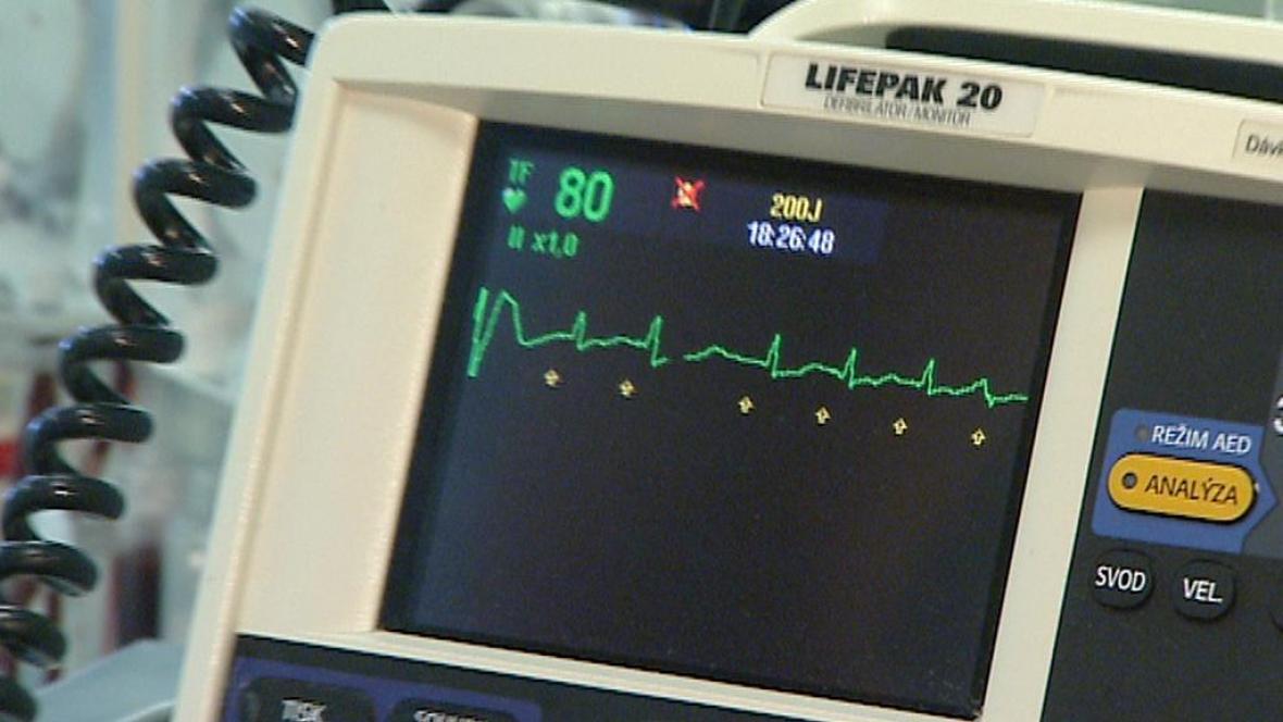 Srdeční monitor