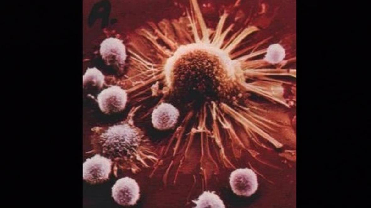 Rakovinný nádor