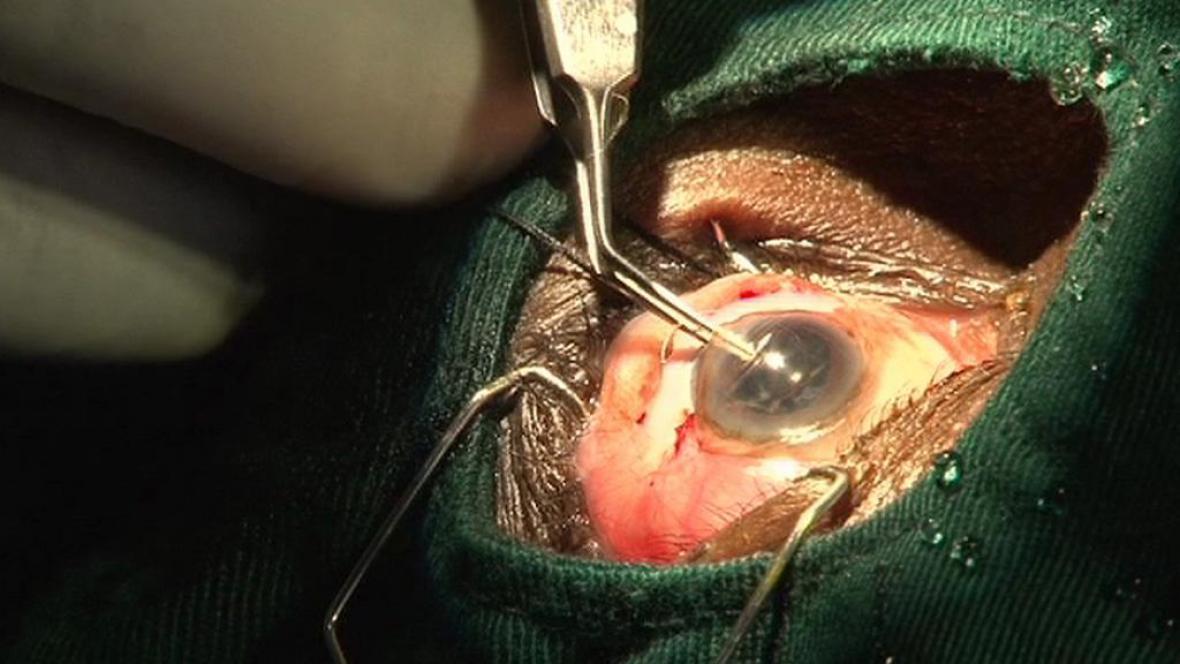 Operace oka
