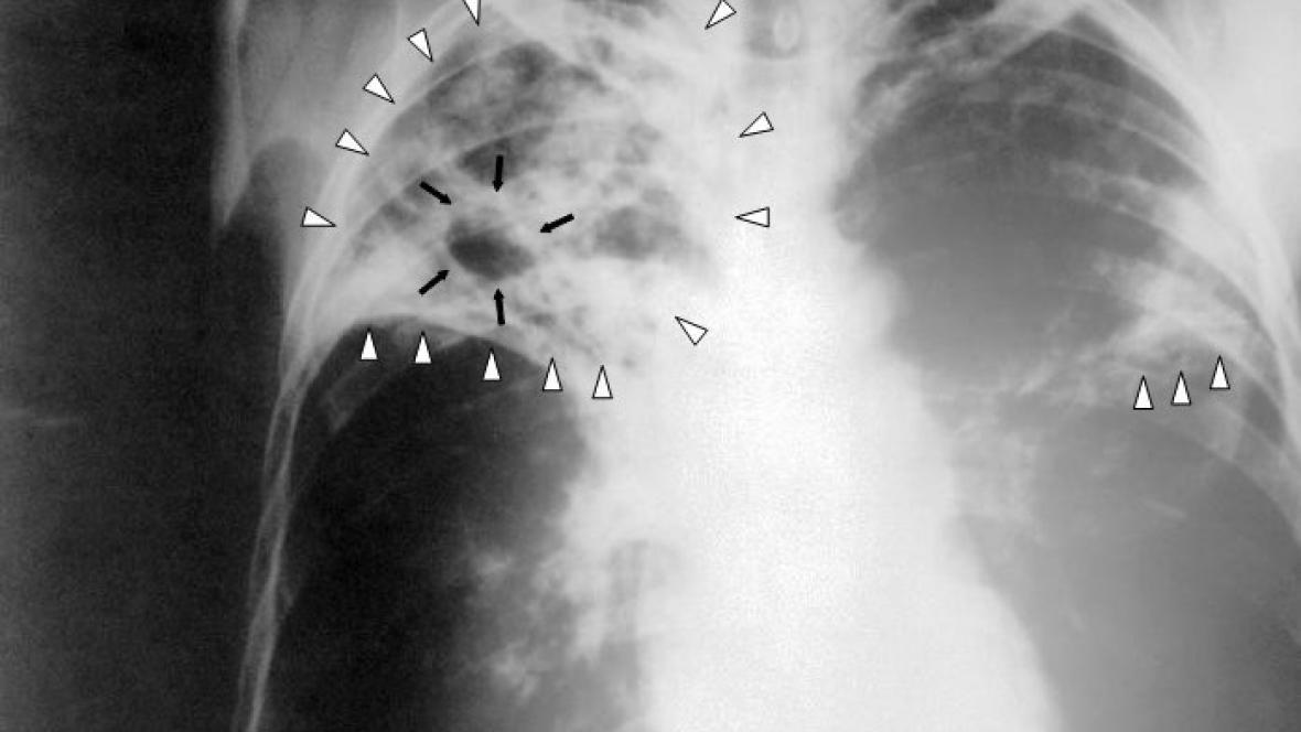 Rentgen plic postižených tuberkulózou