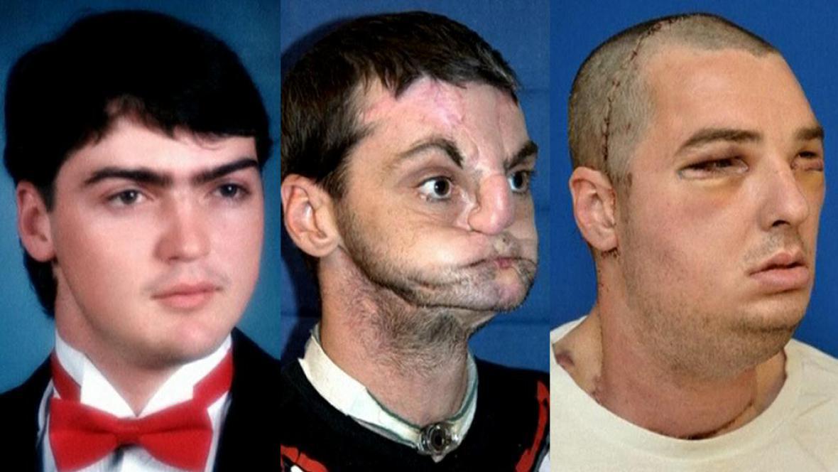 Richard před nehodou, po nehodě a po transplantaci obličeje