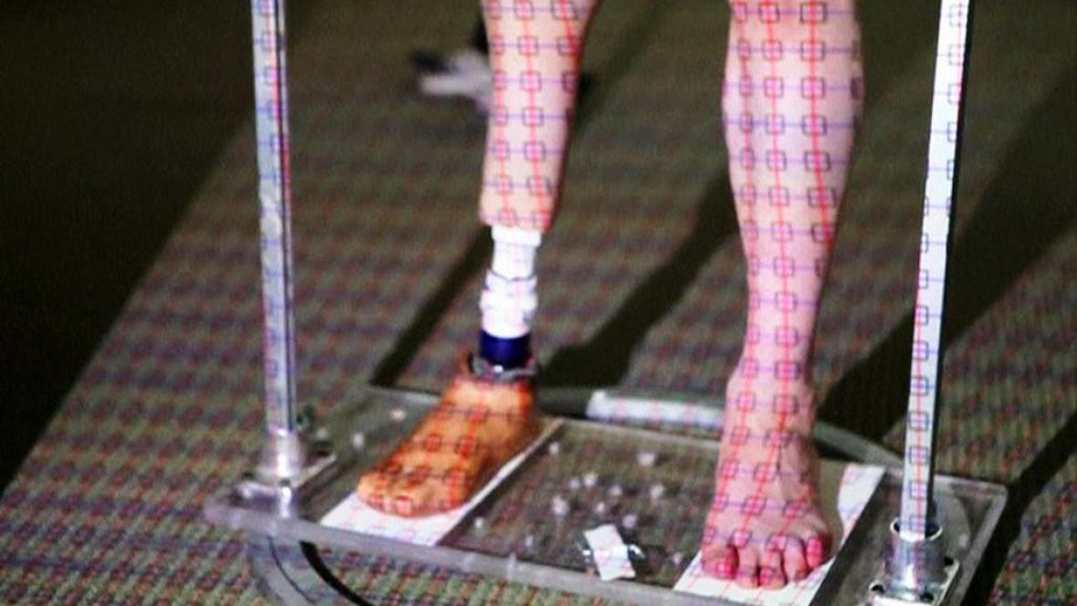 Protéza z 3D tiskárny