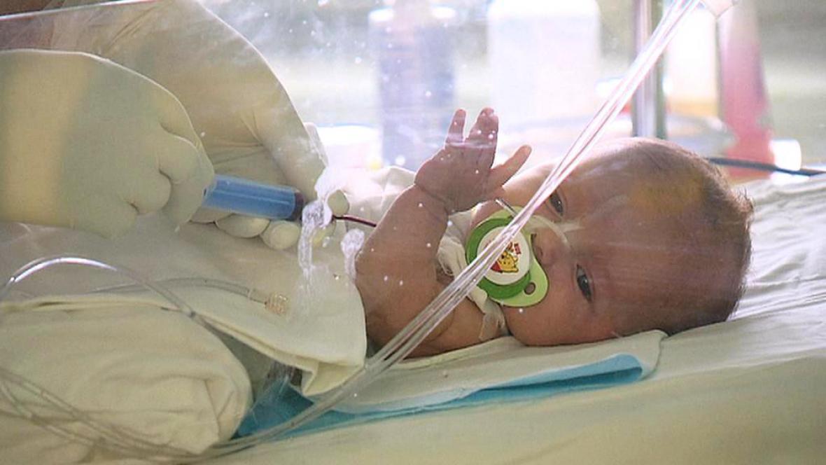 Dvouměsíční holčička podstoupila transplantaci pupečníkové krve