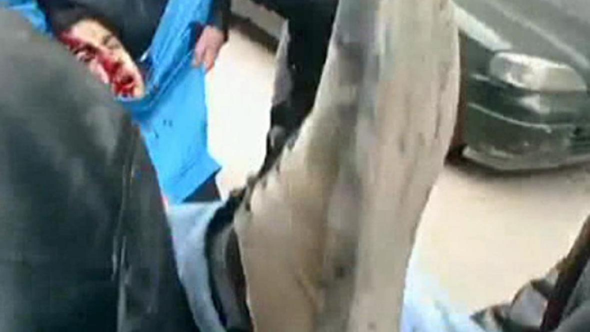 Zraněný demonstrant v Sýrii
