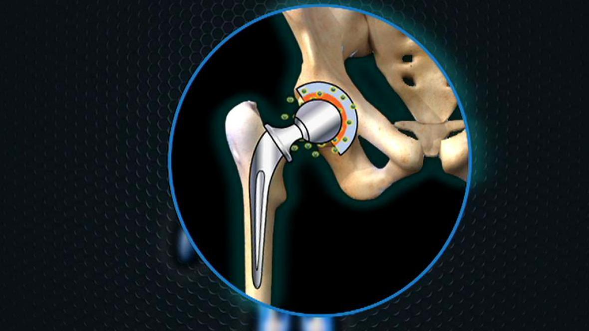 Problém s kloubními implantáty firmy DePuy