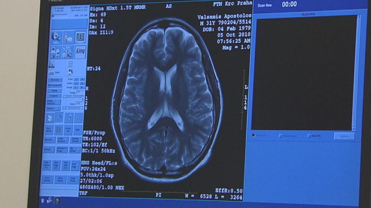 Vyšetření mozku