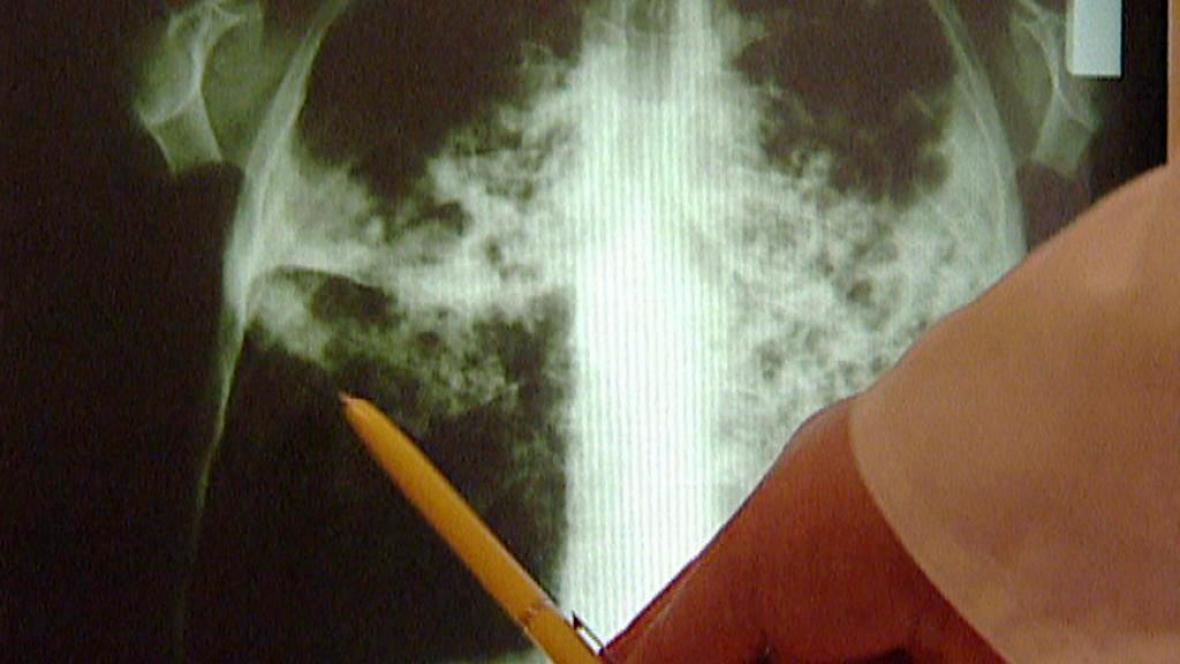 Rentgenový snímek člověka s tuberkulózou