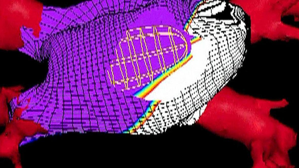 Digitální model srdce
