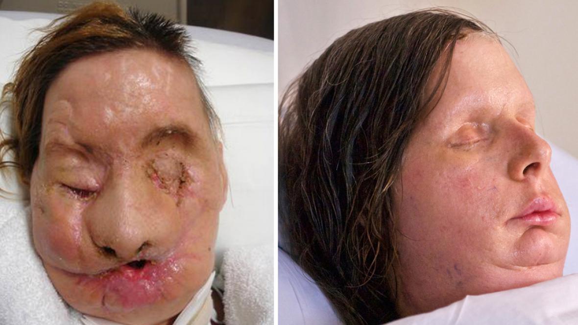 Charla Nashová před transplantací obličeje a po ní