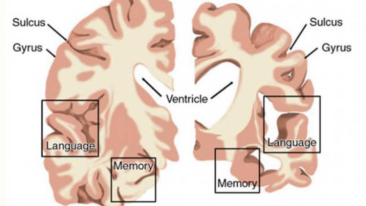 Zdravá část mozku proti nemocnému mozku