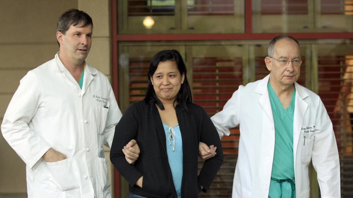 Matku siamských dvojčat přivádějí lékaři