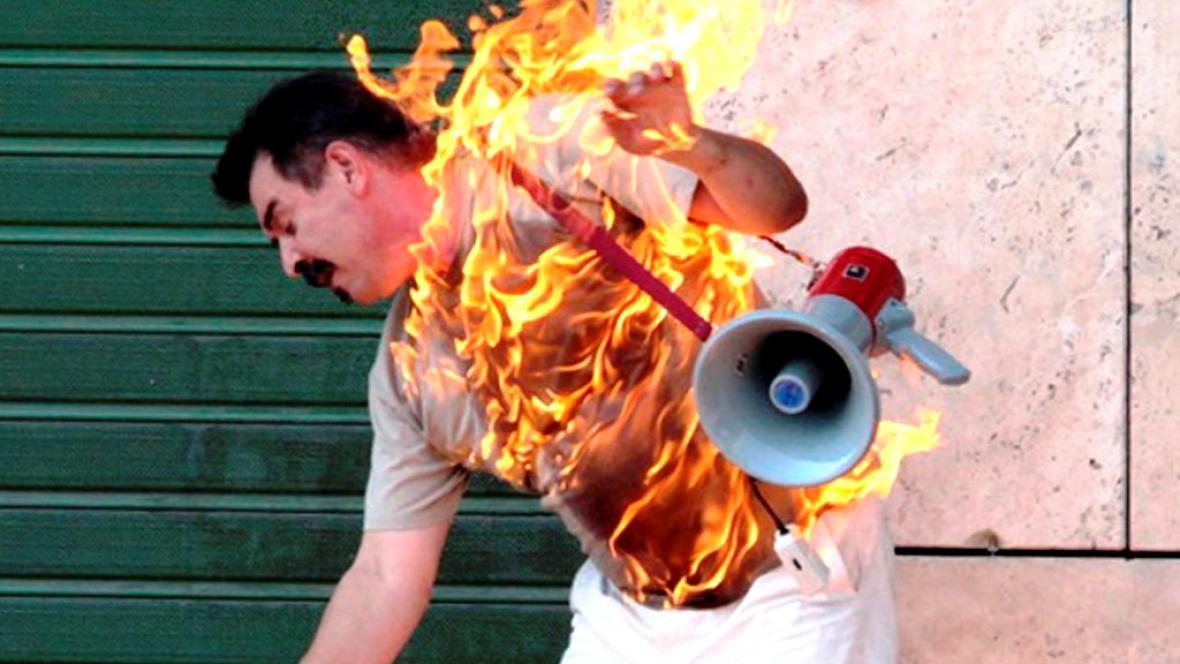 Muž se pokusil upálit