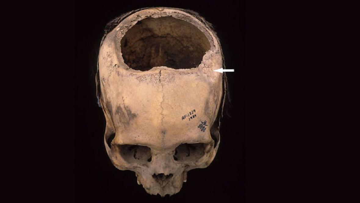 Trepanovaná lebka