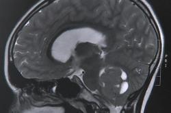 Nádor na mozku