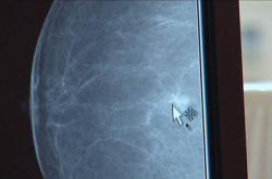 Ilustrační foto - rakovina prsu
