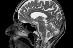 Lidský mozek na MRI