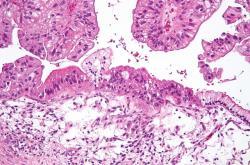 Rakovina vaječníků