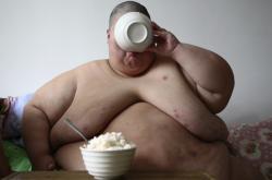 Extrémní obezita je vždy extrémně riziková